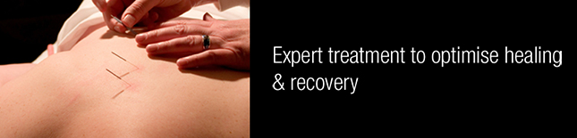 Expert treatment to optimise healing & recovery