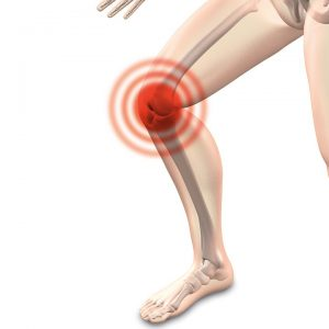 What is Patellofemoral Pain Syndrome? by Melanie White